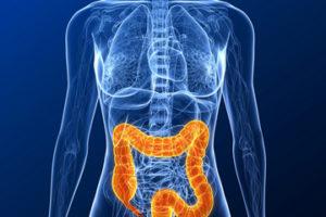 colon-cancer-111129